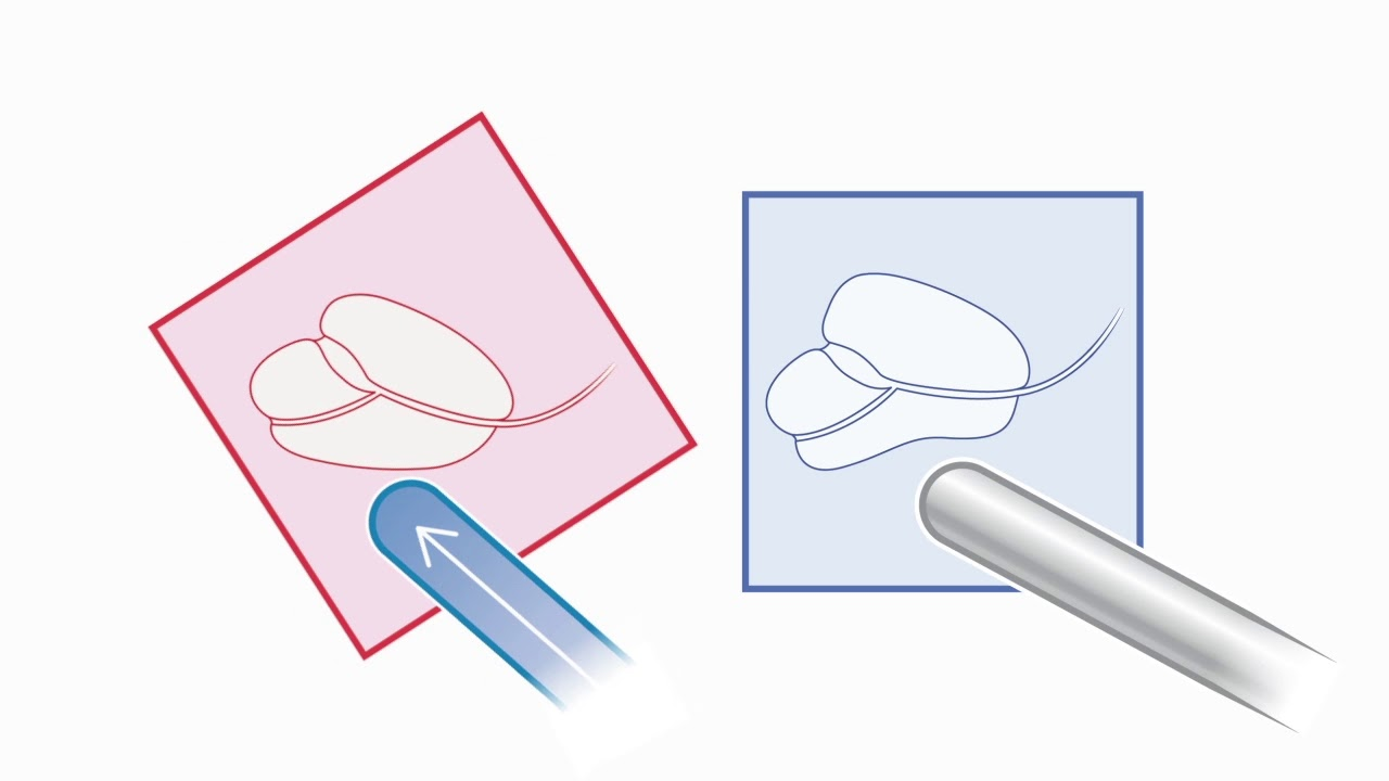 The Benefits of Predictive Fusion for MRI Fusion Prostate Biopsies