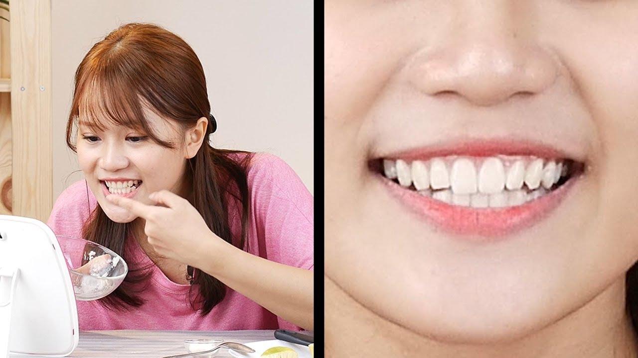 Ini Cara Memutihkan Gigi Secara Alami Wajib Coba Tips