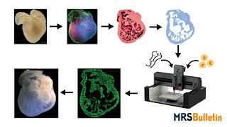 3D bioprinting of organs