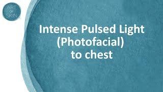 Chest Rejuvenation of décolleté with IPL Photodynamic Therapy