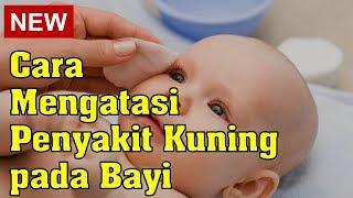 Download Video Cara Mengatasi Penyakit Kuning Pada Bayi MP3 3GP MP4