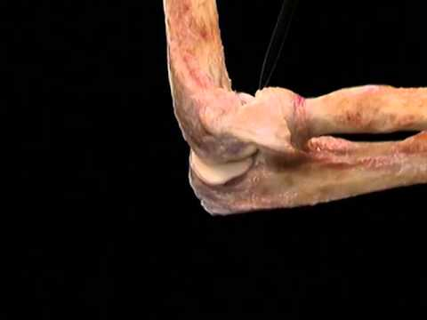 Aclands Video Atlas Of Human Anatomy Elbow Youtube