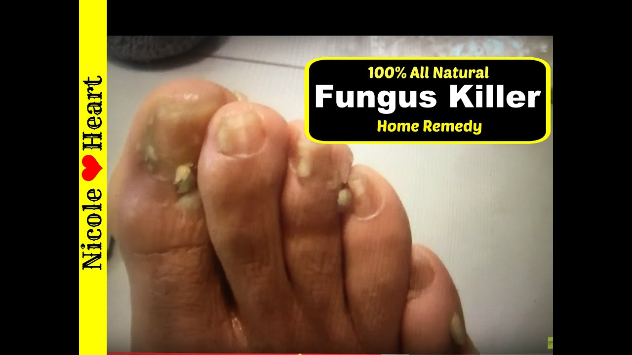 Home Remedy for Toenail Fungus & Athlete\'s Foot | Natural Fungus ...