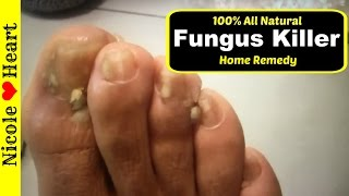 Home Remedy for Toenail Fungus & Athlete