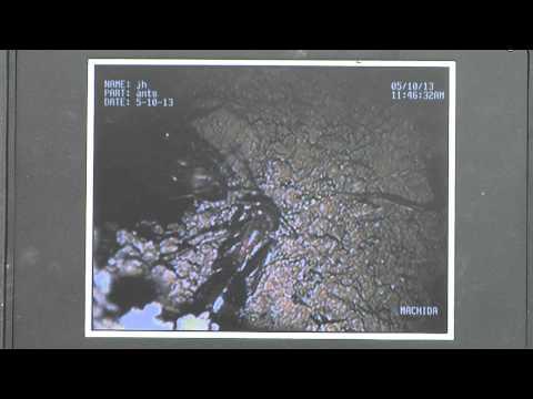 Tiny camera explores ant colony