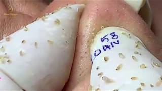 #58 #loannguyen_ACNE TREATMENT WITH Loan Nguyen| tratamiento del acné
