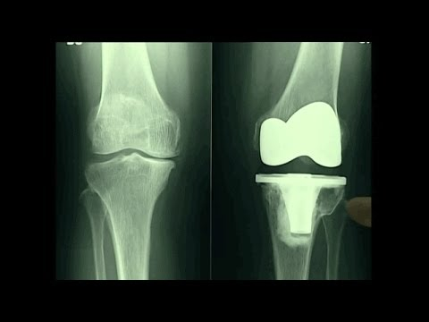 Protesi totale di ginocchio: video dell'intervento - ViYoutube
