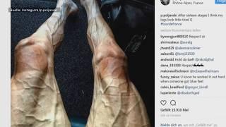 Tour de France: Die Beine eines Profiradfahrers nach 2829 Kilometern
