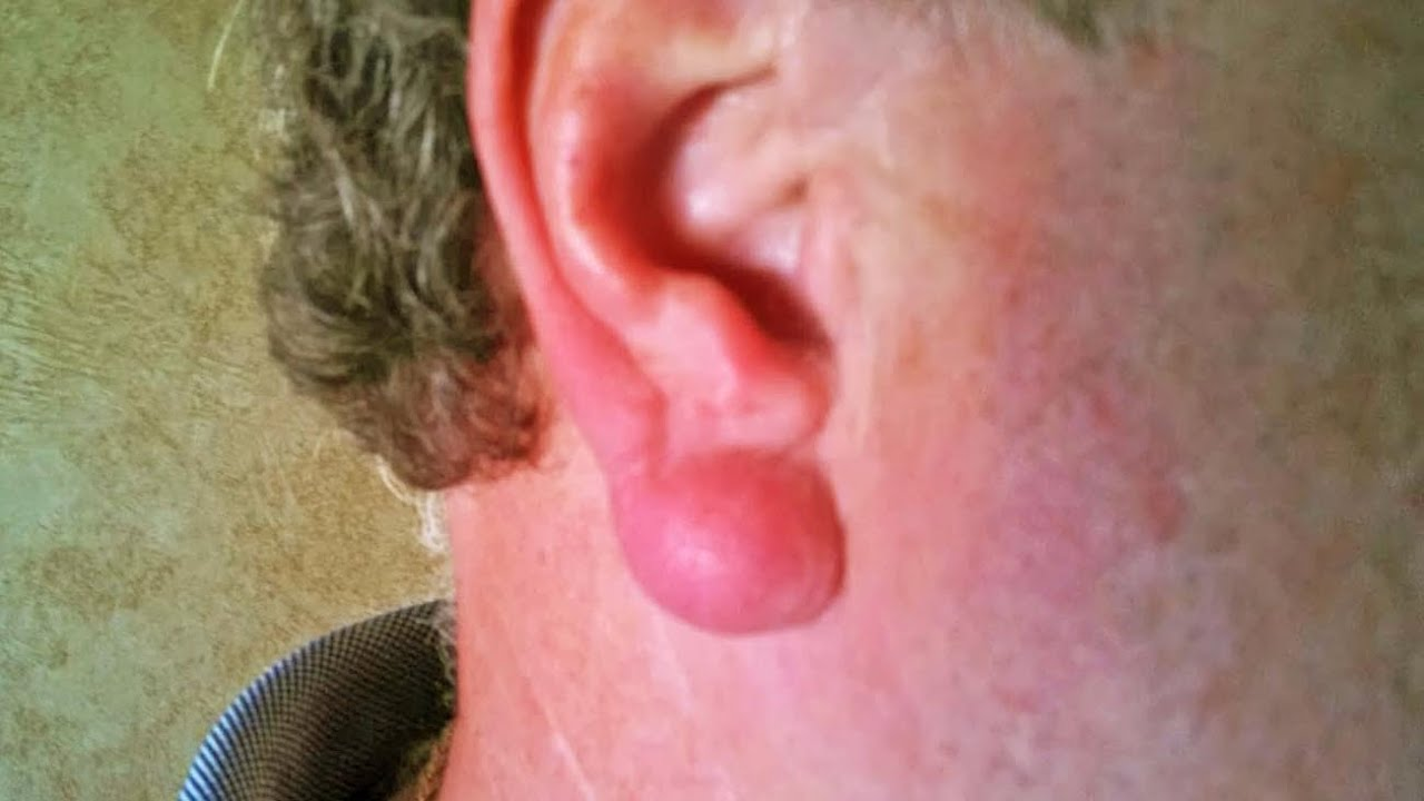 Popping Ear Cysts, Abscessess and Keloids - YouTube