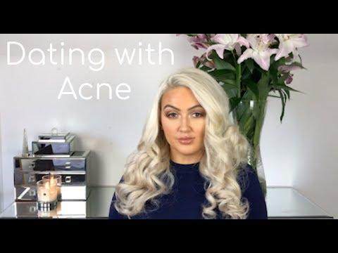 acne online dating headline voor mannelijke dating profiel