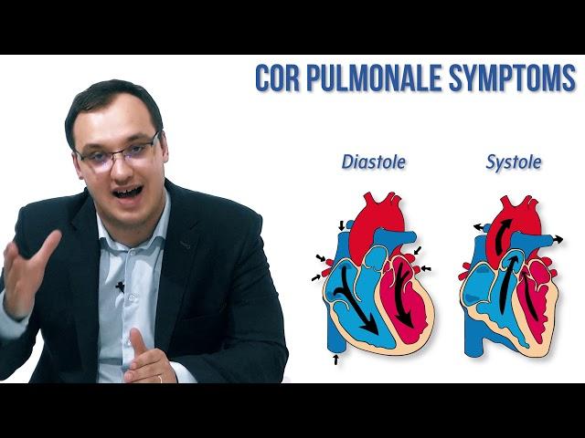 Cor Pulmonale: Symptoms Download video - get video youtube