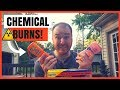 Dad's Guide To Sunscreen 2017 | Banana Boat Sunscreen Causing Chemical Burns? | Mineral vs Chemical