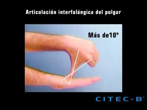 Columna del pulgar (4) - Articulación interfalángica - YouTube
