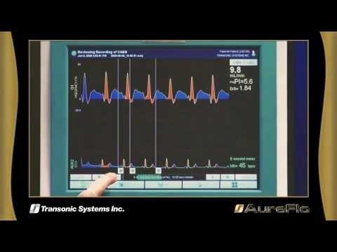 Transonic Systems Inc. AureFlo