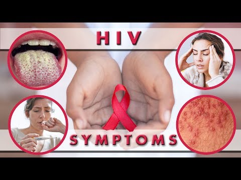 HIV Symptoms in Men and Women Week By Week | HIV Symptoms After 2 Weeks