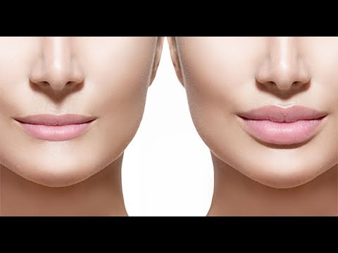 ARE LIP FILLERS SAFE? DISCUSSION WITH DERMATOLOGIST DR. ELIOT BATTLE OF CULTURA MED SPA