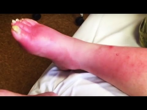 Worst Infections!  (Diabetic Foot)