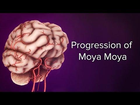 Medical Animation: Progression of Moyamoya | Cincinnati Children's Cerebrovascular Center