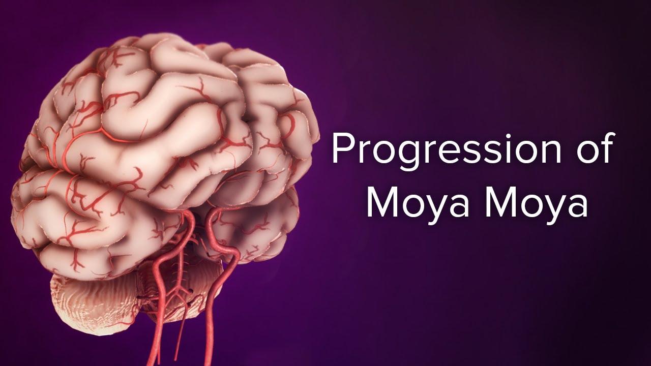 Cirugía moyamoya