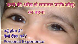 नवजात शिशु की आँख से पानी या आँसू आना। Watery Eyes in babies | Blocked Tear Duct in Babies