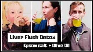 Liver Flush DETOX - {DRINKING Epsom Salt + Olive Oil} | The Stern Method