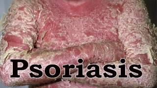Home Remedies For Psoriasis - How To Treat Psoriasis Naturally