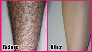 पाएं अनचाहे बालों से छुटकारा | Permanent Hair Removal | Body Hair Removal