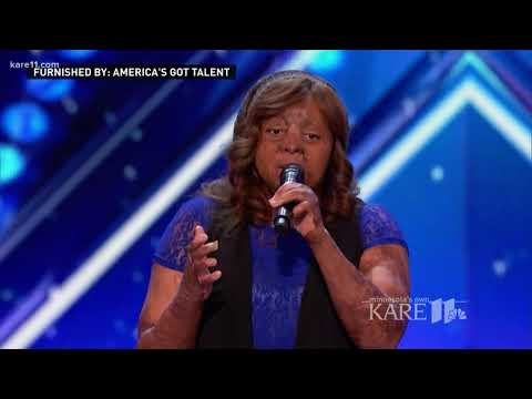 Burn survivor, AGT singer inspires others