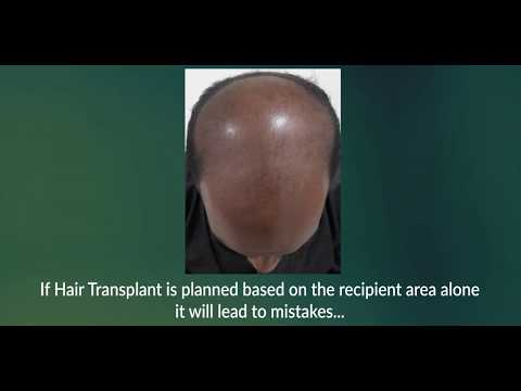 Donor site Assessment is essential before a Hair Transplant!