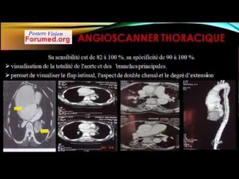 dissection aortique panne évanouissement