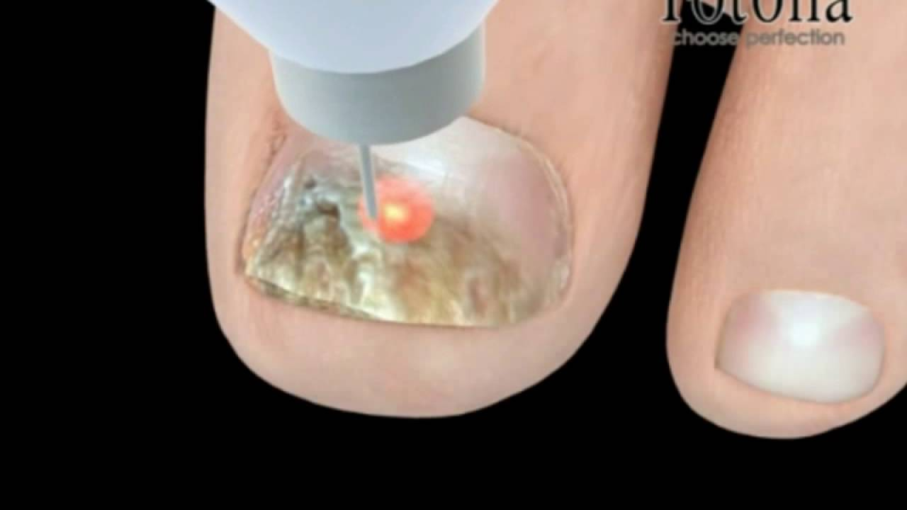 Onychomycosis Fungal Nail Infection Laser Treatment Wahroonga ...