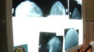 Рак молочной железы- самая распространенная онкопатология среди женщин Красного Луча.