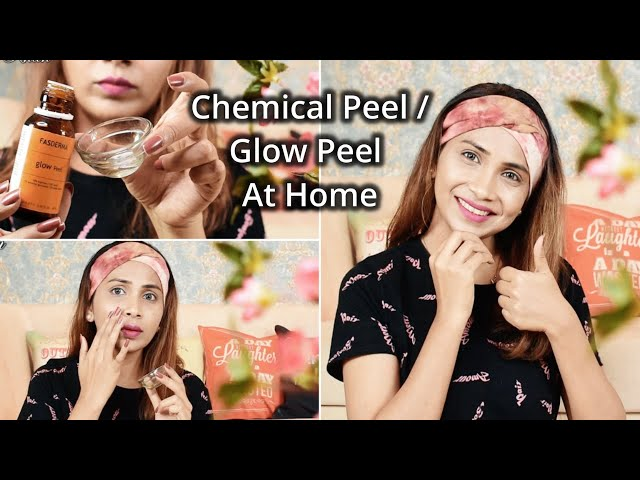 Chemical Peel - At Home - Purpose, Procedure, Risk, Results   How to do CHEMICAL/GLOW peel at home.