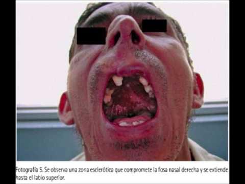 Саркома Капоши - симптомы, лечение