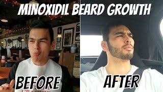 My 1-Year Minoxidil Beard Growth Journey and Side Effects (With Before and After)