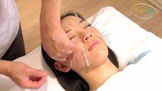 美容鍼灸のパイオニア北川毅が実際に施術する本当の美容鍼灸 thumbnail