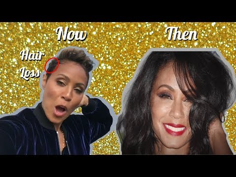 Jada Pinkett Smith on Loosing Her Hair and Taking Steroid Shots | Red Table Talk!