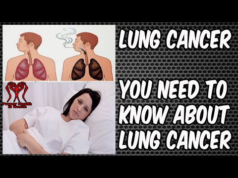 lung-cancer- -why-do-never-smokers-get-lung-cancer- -lung-cancer-symptoms-in-men-and-women