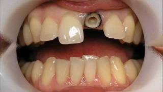 Протезирование зубов г. Сумы wmv(Протезирование на культевых вкладках, ДОКТОР МОВА, протезирование зубов Сумы, стоматолог Сумы, стоматологи..., 2012-02-25T18:09:00.000Z)