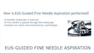 EUS-Guided Fine Needle Aspiration