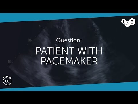 Patient with Pacemaker - What would you do if you image this patient? 24th April 2018