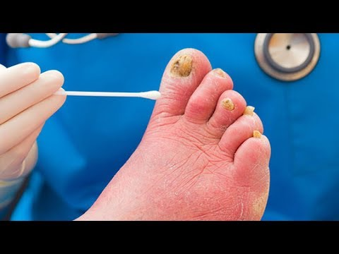 Best Toenail Fungus Treatment. #1 Secret Remedy At The End of This ...