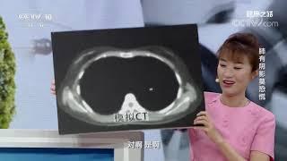[健康之路]肺有阴影莫恐慌 不规整圆点| CCTV科教