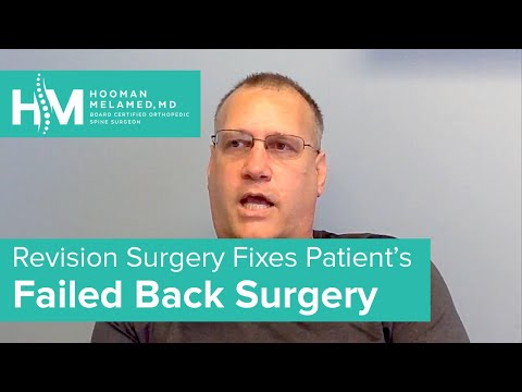 revision-surgery-for-failed-spine-procedures-|-the-spine-pro