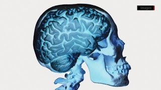Cnn chief medical correspondent dr. sanjay gupta explains the causes and symptoms of chronic traumatic encephalopathy, more commonly known as cte.