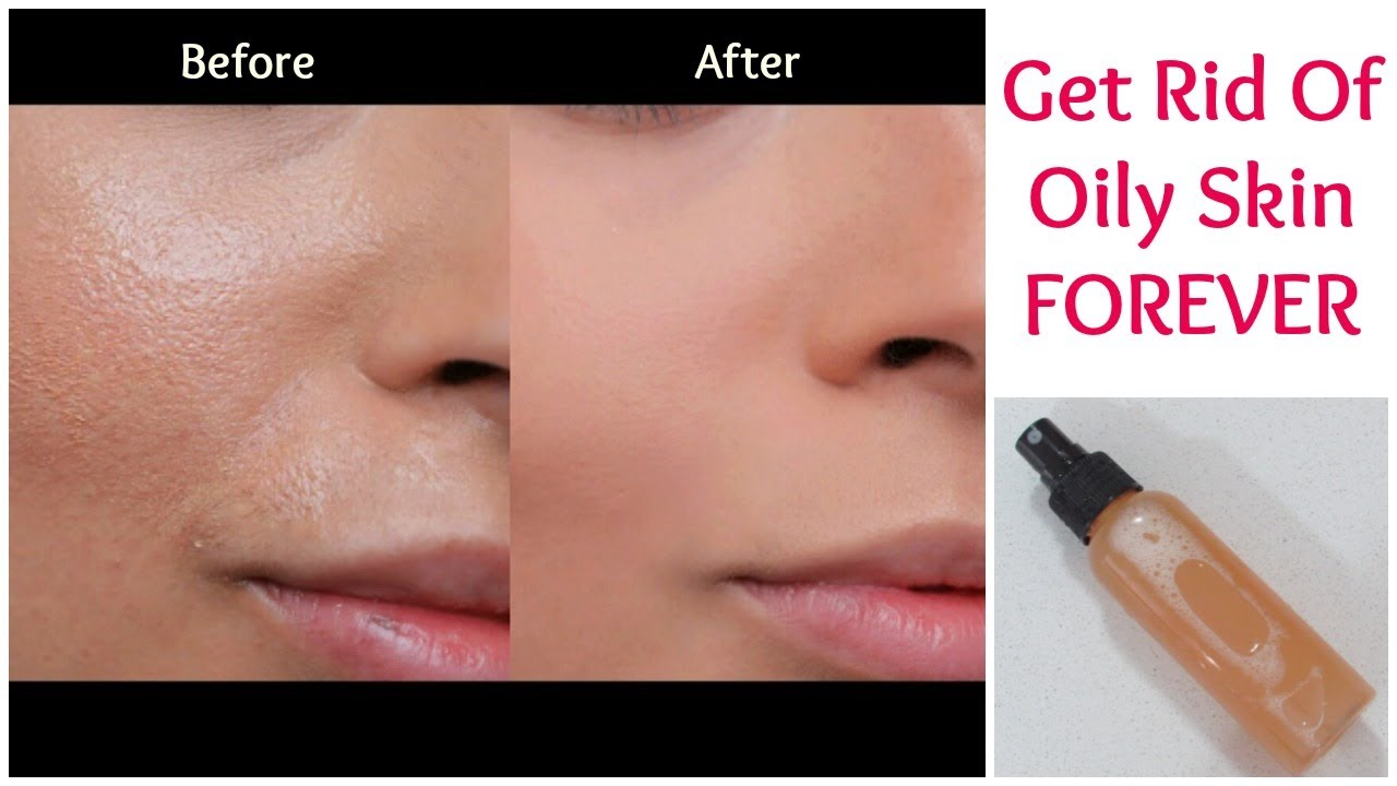 How to get rid of oily skin instantly – Homemade face packs for oily skin forecasting