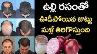 SHOCKING : Onion Juice Regrows Hair? | Home Remedies for Hair Growth | Best Tips | VTube Telugu