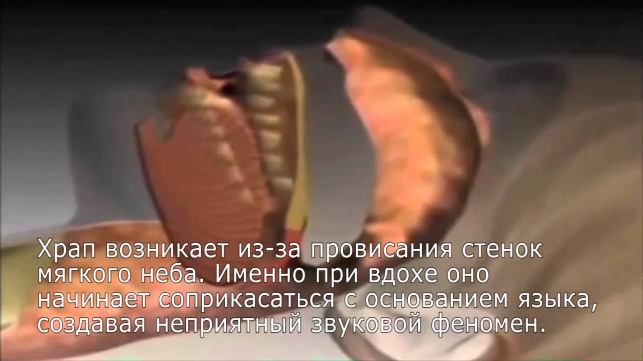 Антихрап opti mc 0099 отзывы - YouTube