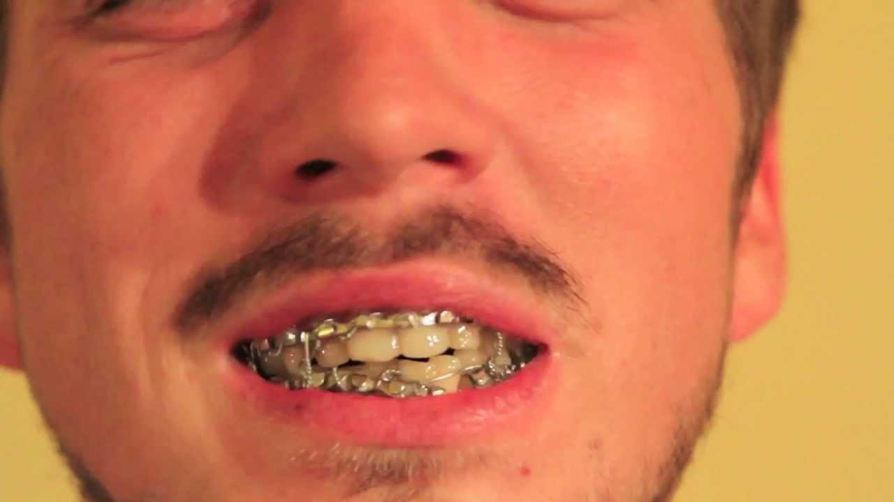 Zach Moon - Love Interruption (Jack White Cover) w/ Jaw Wired Shut ...
