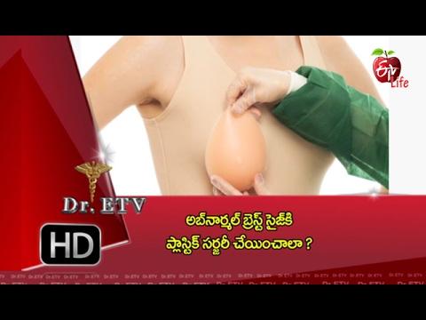 Dr. ETV | Abnormal breast size - plastic surgery | 1st February 2017 | డాక్టర్ ఈటివీ